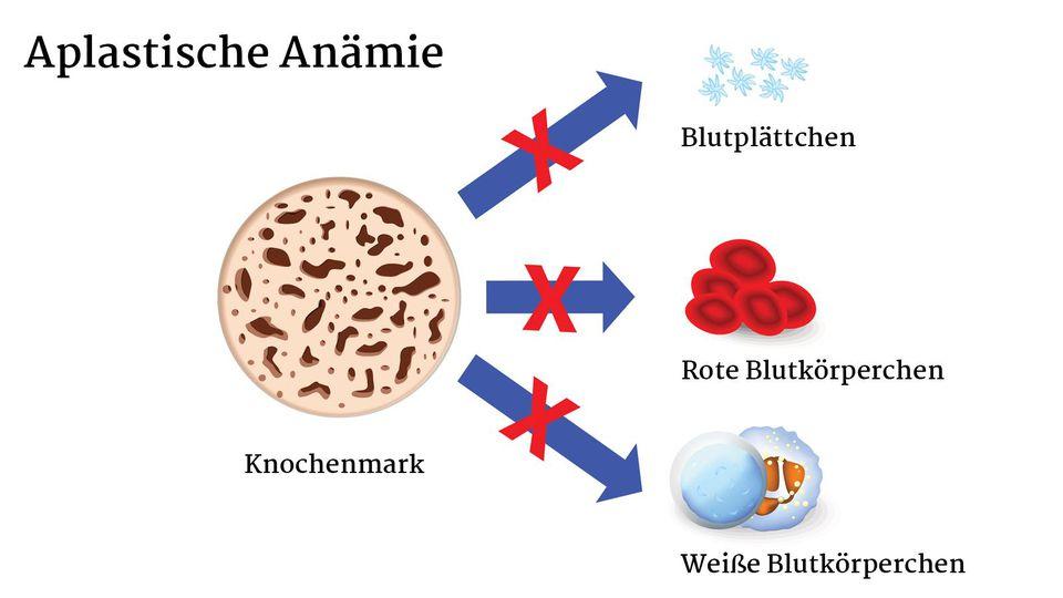Illustration der Aplastischen Anämie