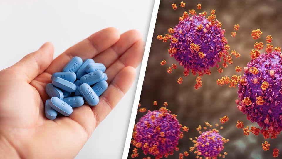 Forscher glauben, dass Aids bald ausgerottet sein könnte.