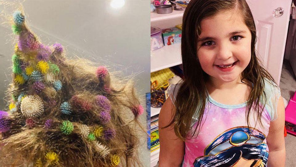 Bunchems haben auch einen großen Haken - vor dem auch der Hersteller ausdrücklich warnt: Die haften auch fantastisch in den Haaren, wie Abigail erfahren musste.
