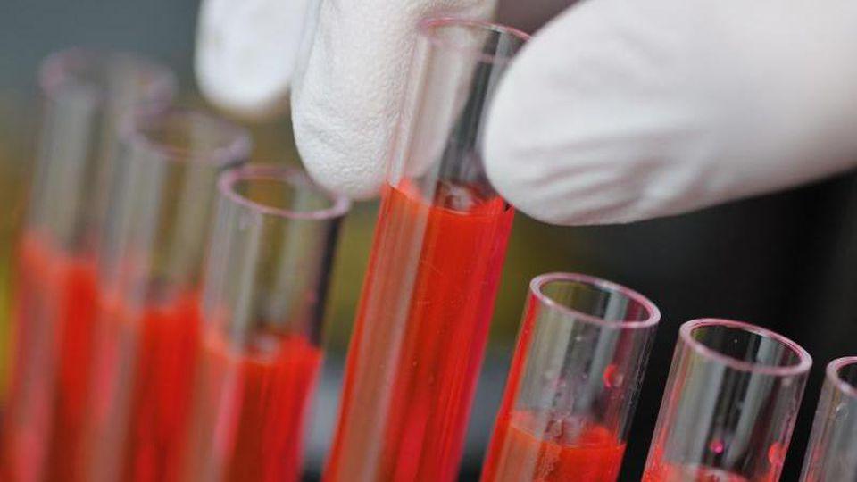 Wissenschaftler der Universität in Findlay haben mit RK 15 einen Stoff gefunden, der gegen Hirntumore helfen soll (Symbolbild).