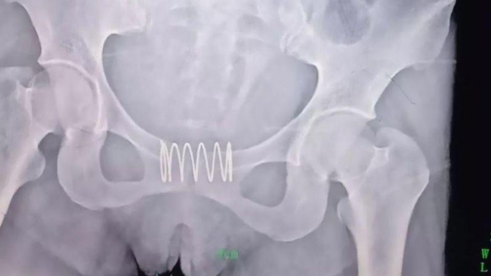 Die Ultraschallaufnahme zeigt, wie die fünf Zentimeter lange Metallfeder im Gebärmutterhals der Frau steckt.