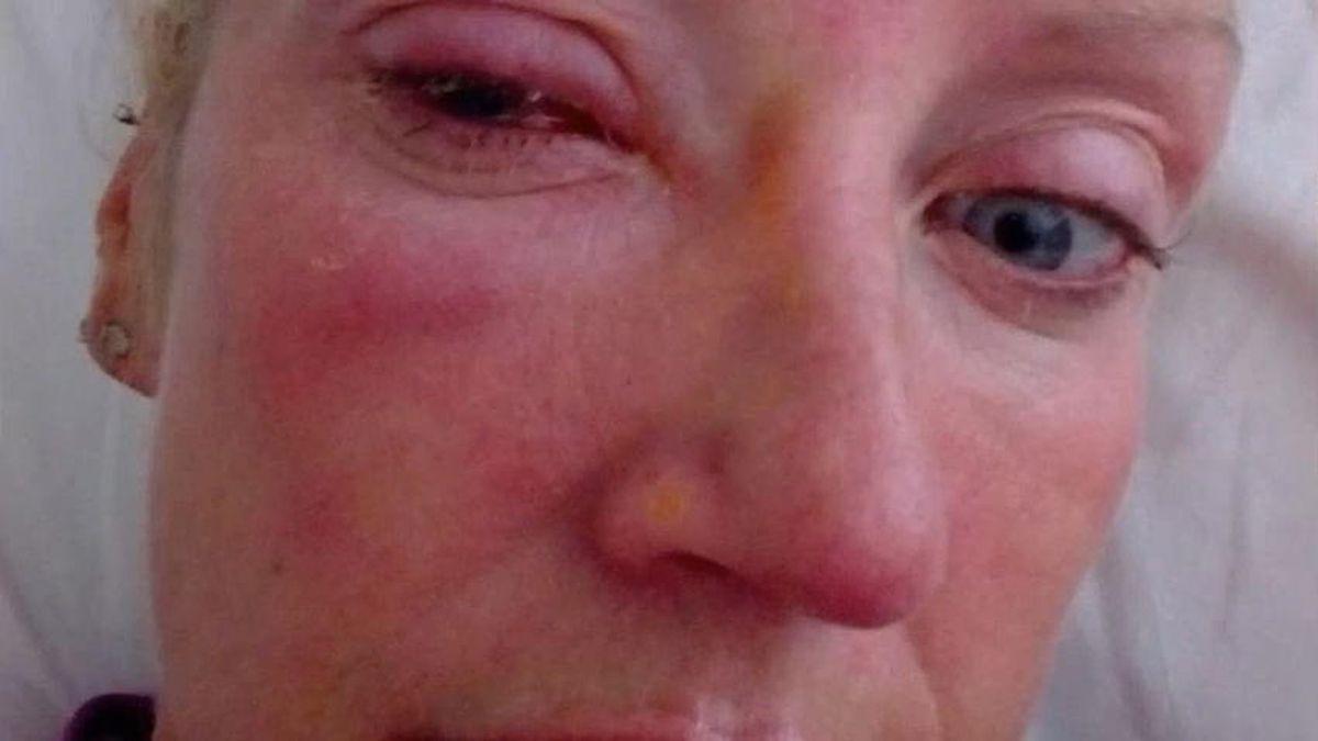verkauft Sonderangebot doppelter gutschein Akanthamöben: Weil sie ihre Kontaktlinsen drin ließ – Frau ...