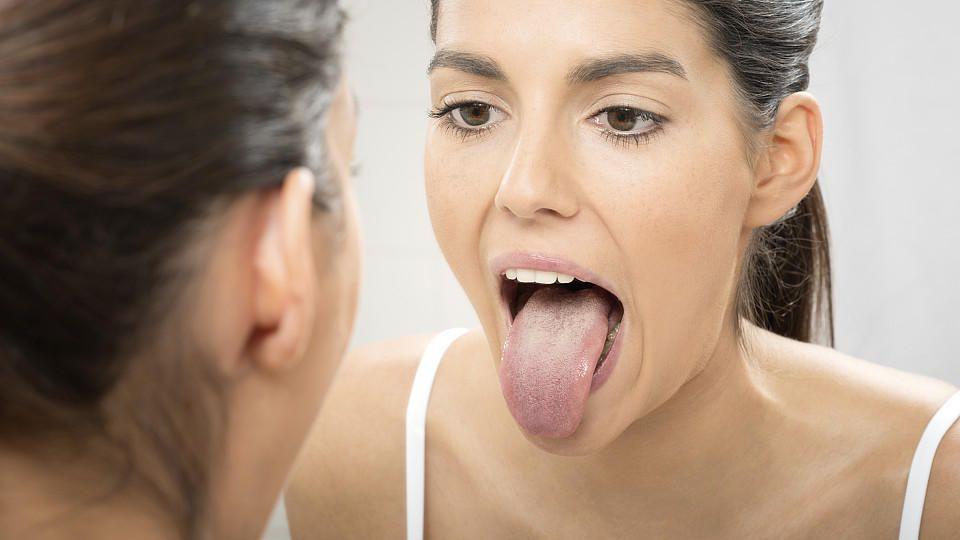 Zungenbelag kann ein Hinweis für Krankheiten sein.