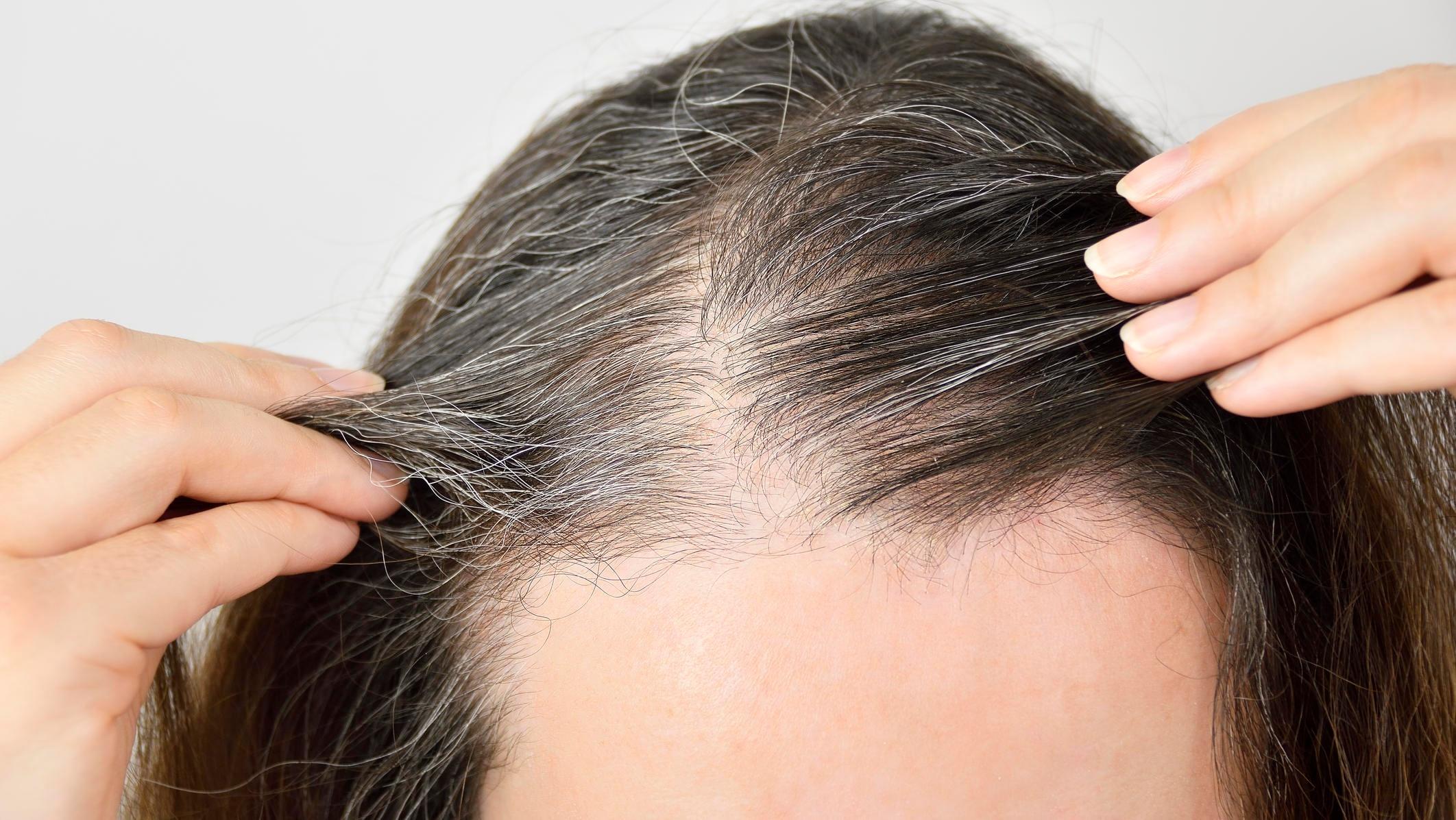Woher kommen bloß meine grauen Haare?