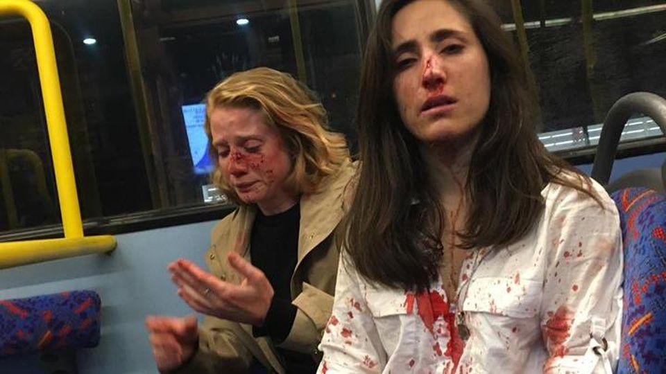 Melania Geymonat postete auf Facebook ein Bild von sich und ihrer Freundin nach der Attacke.