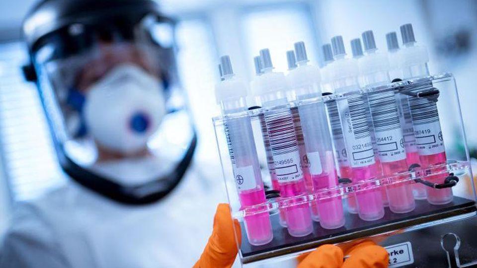Eine wissenschaftliche Mitarbeiterin hält Coronavirus-Testproben in der Hand. Foto: Peter Steffen/dpa/Archivbild