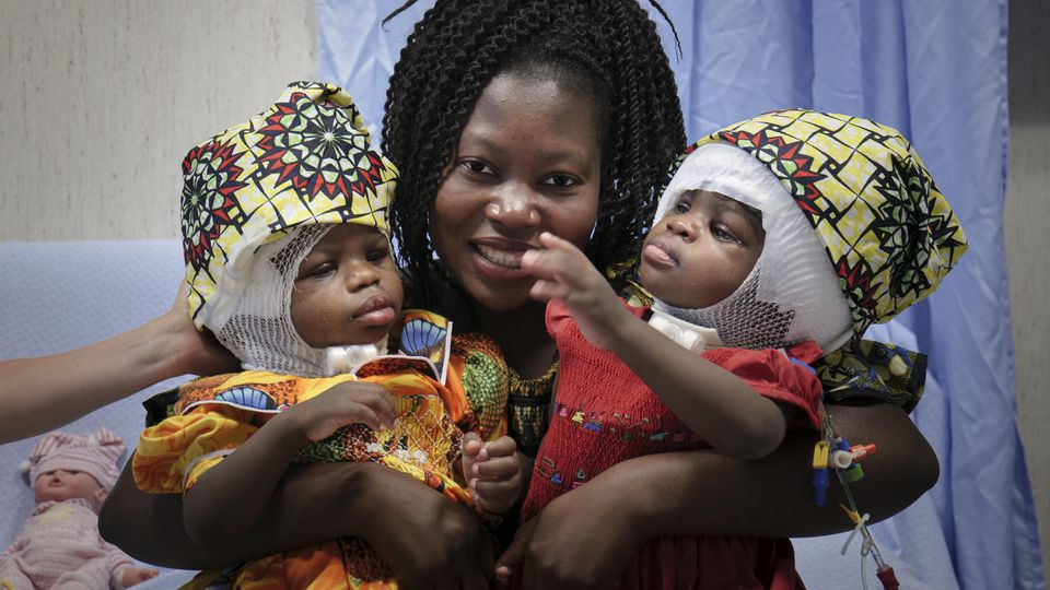 Siamesische Zwillingsmädchen in Italien getrennt