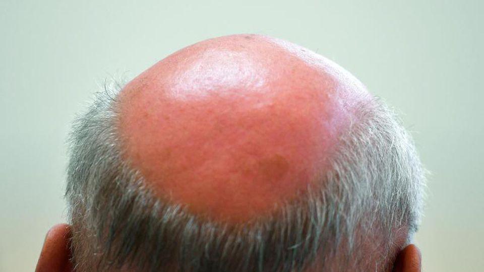 Die Glatze eines Mannes. Foto: Ralf Hirschberger/Archivbild
