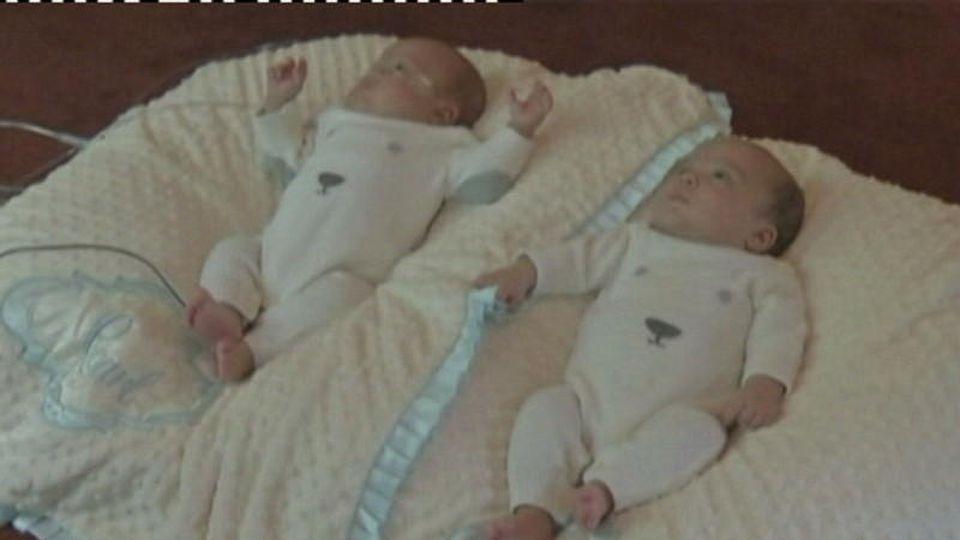 Zwillingsgeburt in Kansas City dauert 39 Tage!