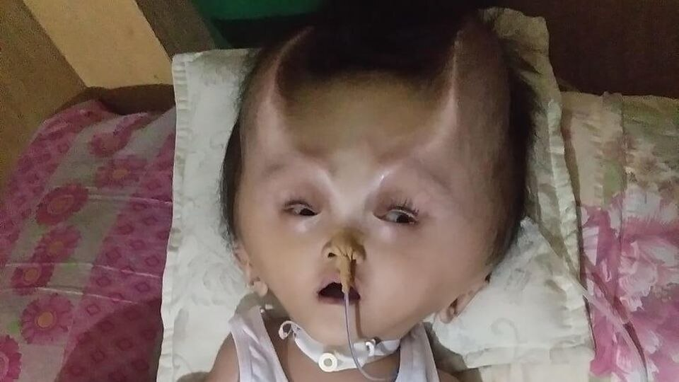 NEWS COPY - WITH VIDEO AND PICTURESThis toddlers battling a rare brain condition has been left with real-life DEVIL HORNS after a botched operation.Twenty-two month old Clyne Solano suffered from congenital hydranencephaly in the womb which prevented