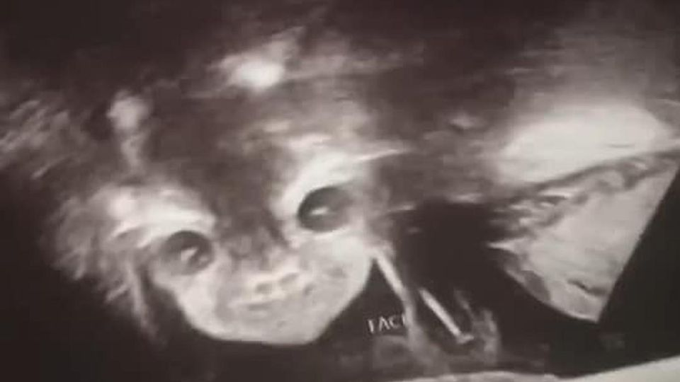 Während des Schwangerschaftsuntersuchung sieht  das Kind von Iyanna Carrington wie ein Teufels-Baby aus.