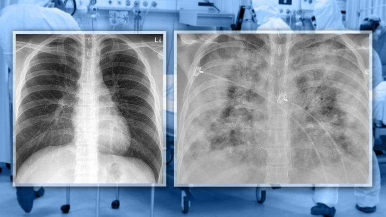 Links sieht man die Lunge eines geimpften Covid-19-Patienten und rechts die eines nicht geimpften Patienten.